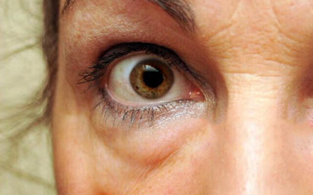 Miért táskás a szemem? – A szem alatti táskák kialakulásának okai