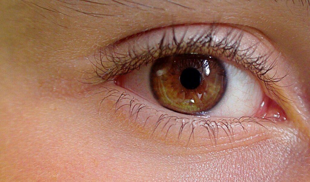 ödémás szem - mit tehetünk ellene