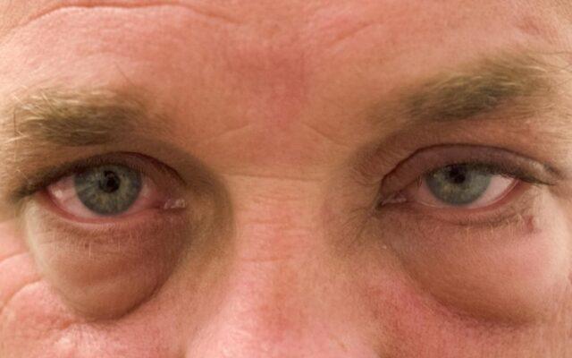 ödémás szem